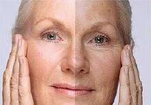 Правила ухода за кожей лица в зимнее время