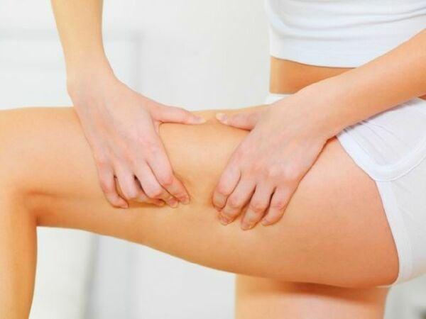 Как избавиться от целлюлита? — практические рекомендации